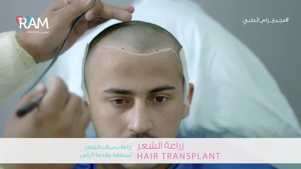 زراعة بصيلات الشعر لمنطقة مقدمة الرأس ضمن مجمع رام الطبي في الدمام Youtube