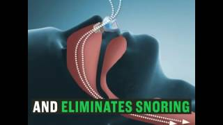 SLEEP AID - STOP SNORING INSTANTLY! 100% SATISFACTION GUARANTEED!