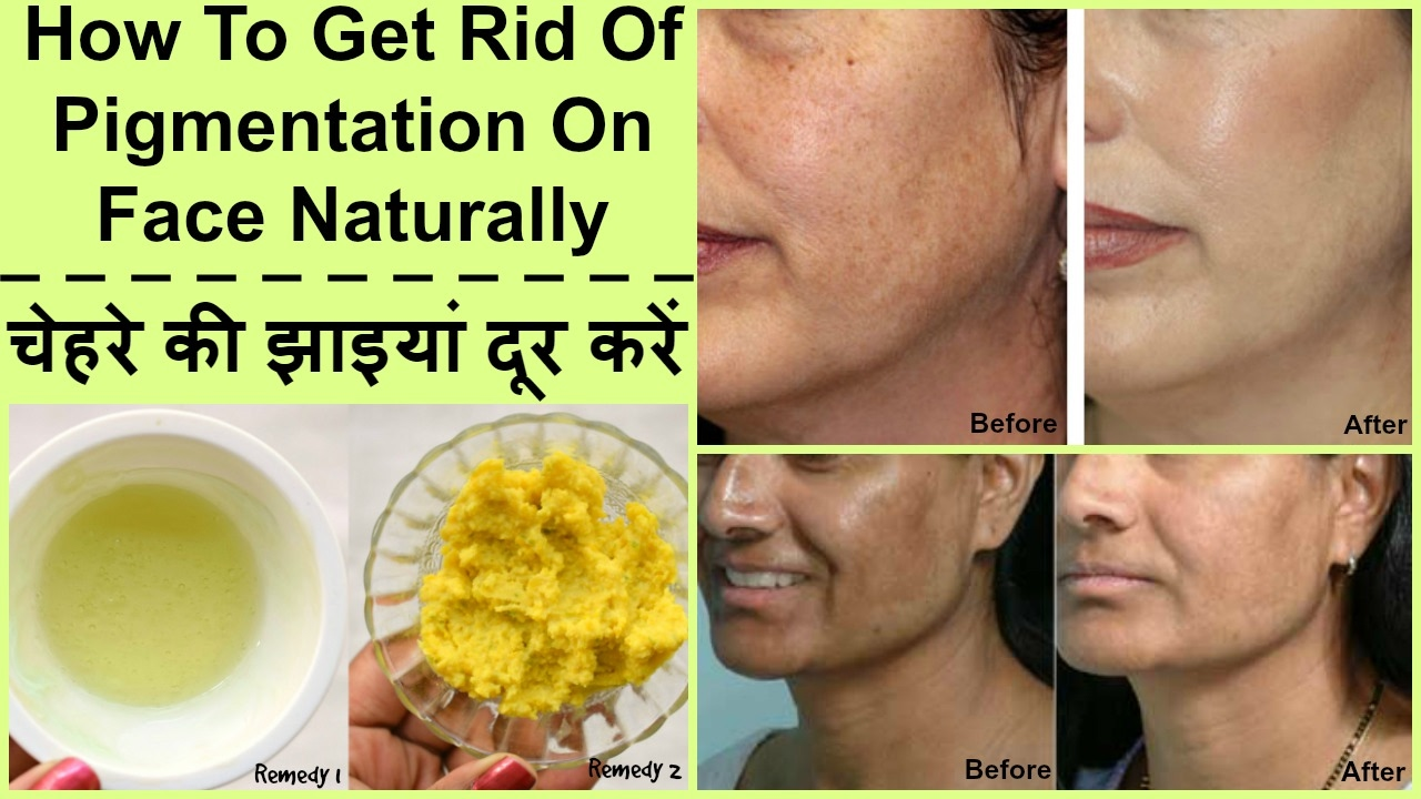 How To Remove Skin Pigmentation Naturally