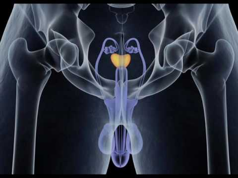 Prostate Health, Treatment and Relief Binaural Beats + Isochronic Tones - Prostate Problems Relief