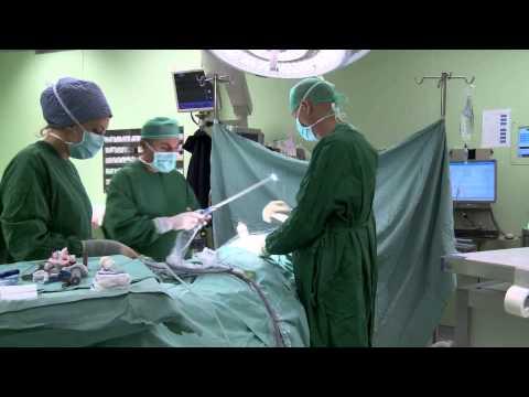 Новые методы лечения рака кишки в Израиле