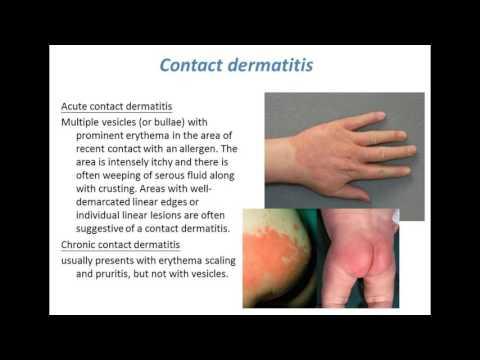 Common skin conditions
