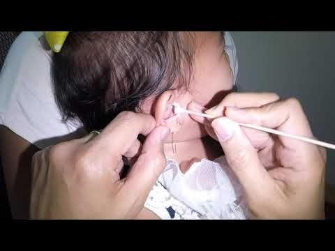 Crying 2 Year Old Baby Girl's Earwax Removal & Ear Cleaning