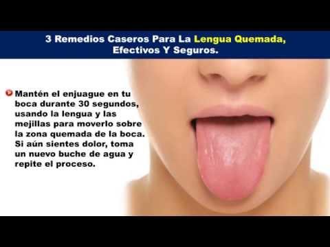 Remedios naturales para la boca seca o xerostomia - Sequedad de boca remedios naturales ...