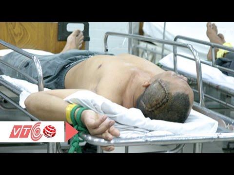 Chấn thương sọ não do tai nạn giao thông | VTC