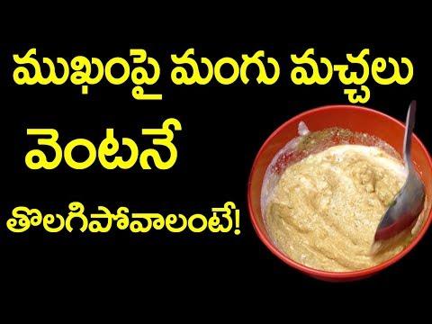 మంగు మచ్చలు క్షణాలలో తగ్గాలంటే || Mangu Spots, Authentic Ayurvedic health tips & Remedies