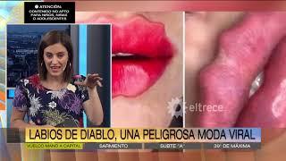 Labios de diablo, una peligrosa moda viral