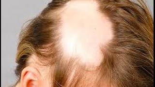 видео Очаговая алопеция, (очаговое облысение), лечение волос