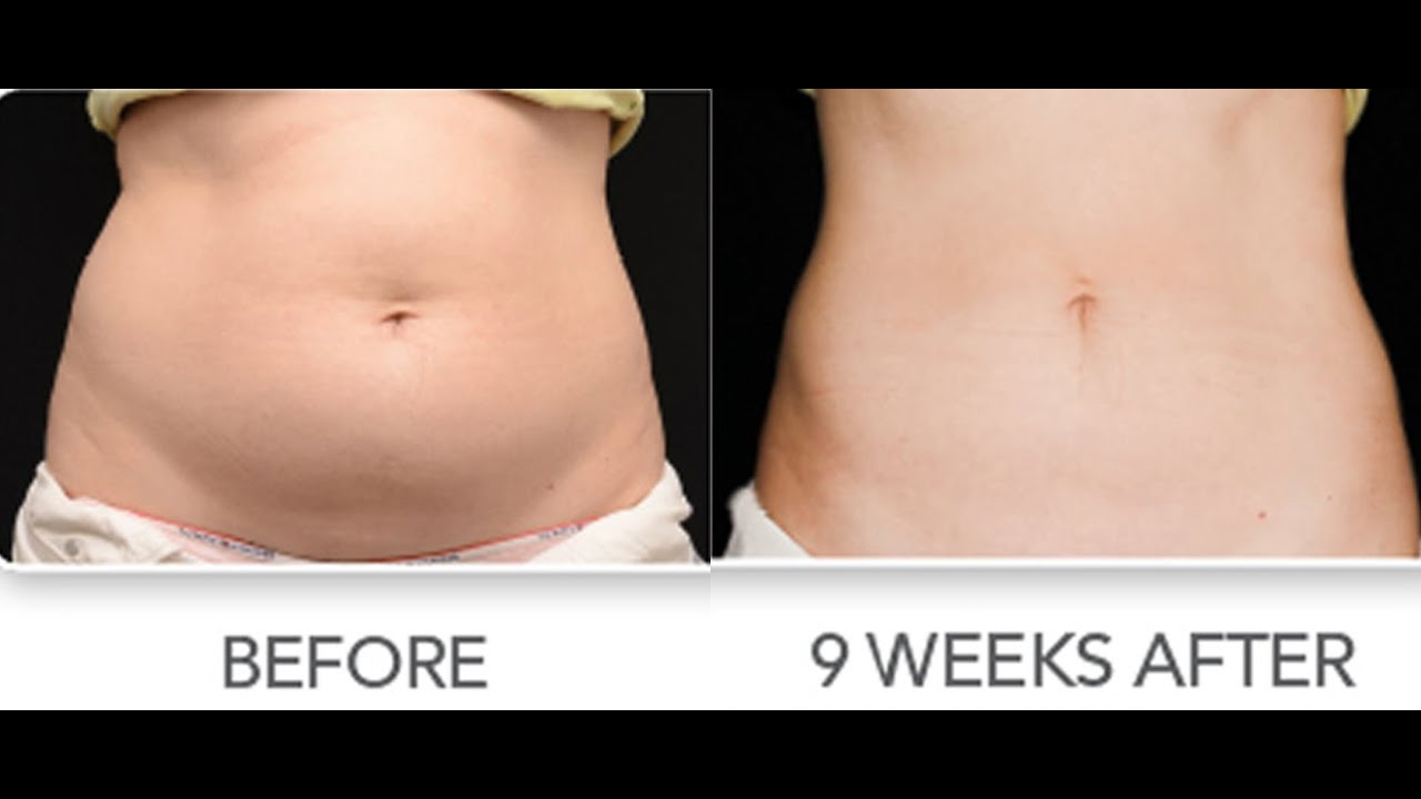 Coolsculpting Long Island New York | Freeze the Fat | Non surgical on