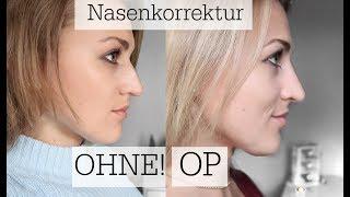 Nasenkorrektur OHNE OP! Erfahrungen, Kosten, Schmerzen, etc.