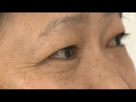 Bác Sĩ Long Tư Vấn Loại Bỏ Da Thừa Và Bọng Mỡ Mí Dưới – TMV Bs.Long