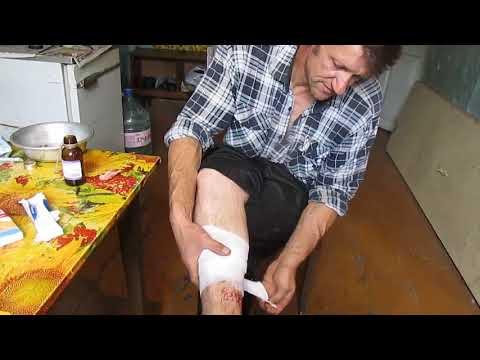 Сколько дней болит нога после прокола гвоздем