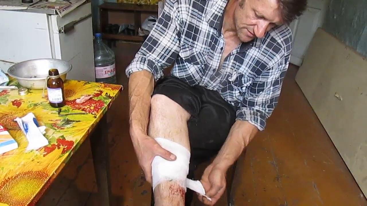 В чом попарить пробитую ногу