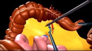 Лечение рака прямой кишки в Израиле. Удаление опухоли кишечника(Хирургическое лечение рака прямой кишки в Израиле. Операция удаления опухоли кишечника за рубежом в онколо..., 2016-04-26T18:38:59.000Z)