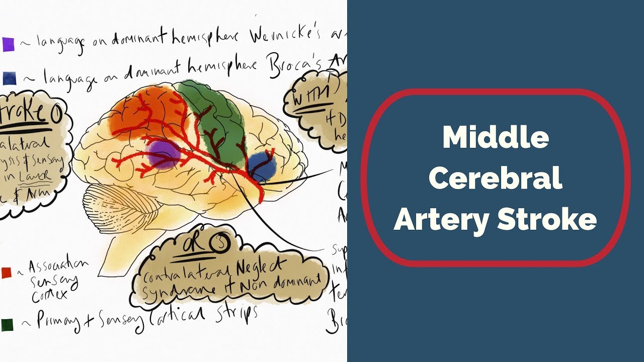 hight resolution of stroke brain diagram