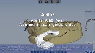 Aidite A IS Pro Abutment scan guide video