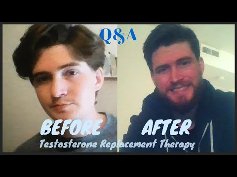 Testosterone Replacement Therapy Q&A