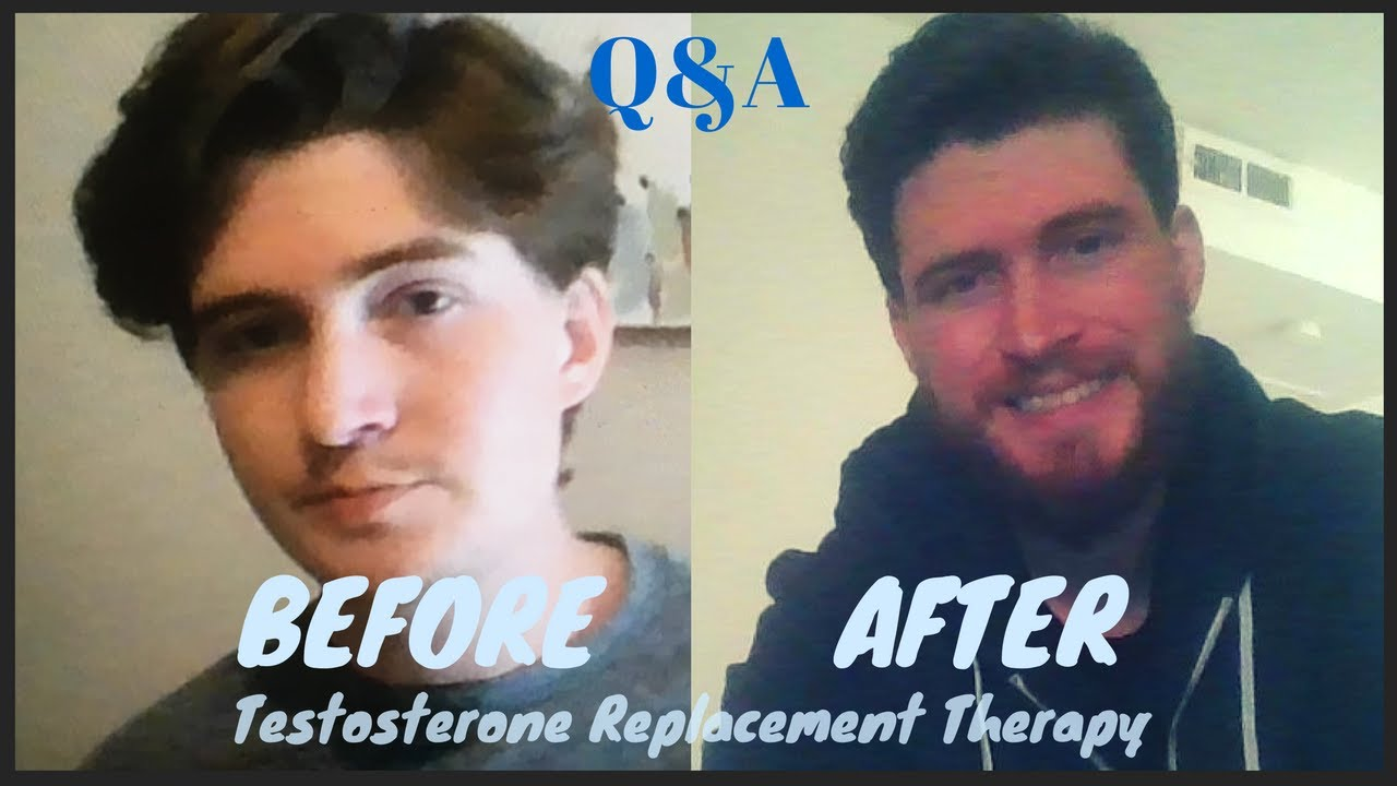 Testosterone Replacement Before And After