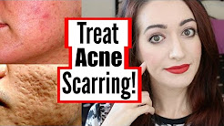 hqdefault - How To Treat Mild Acne Scarring