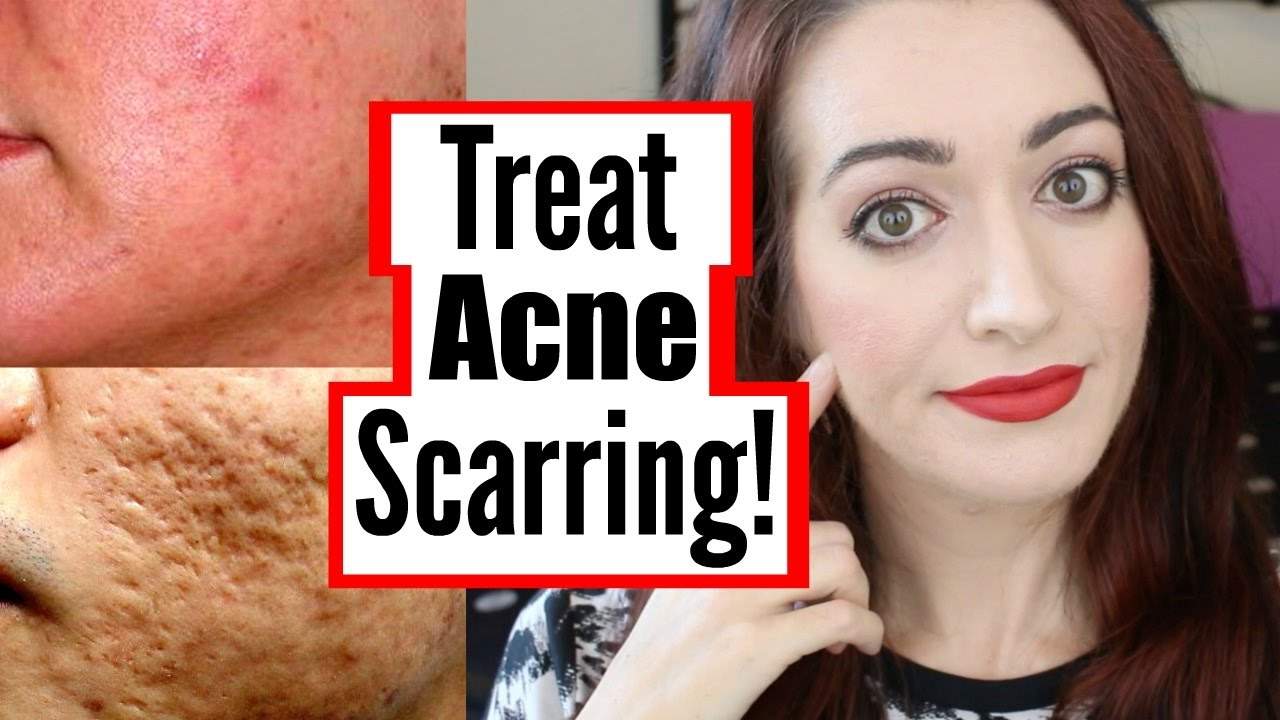 How To Treat Mild, Moderate And Severe Acne Scarring! DIY ...