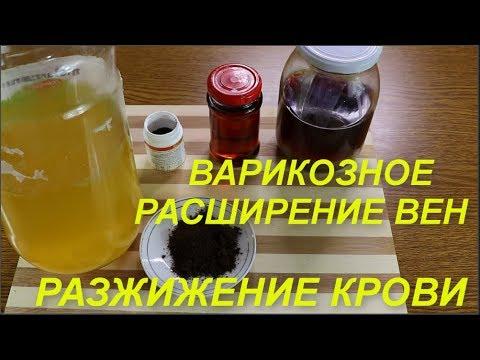 Лечение варикоза Как разжижать густую кровь Тромбофлебит Ответы на вопросы | расширение | правильное | варикозное | пчелиный | полезные | здоровье | варикоза | питание | варикоз | советы
