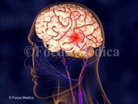 Cerebral angiography - YouTube