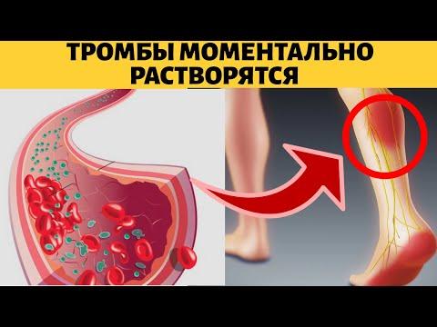 Как растворить тромбы в сосудах,3 способа избавиться от тромбоза в ногах и других частях тела