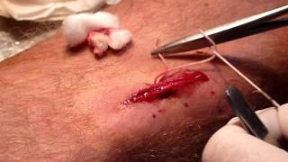 Blessure...suture...