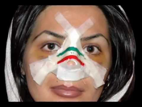 Mahlagha Jaberi is Realll(with her plastic photoshopped face and colored contacts)