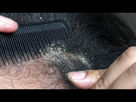 Oily Dandruff Scalp Causes, Treatments and Remedies ...