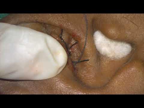 Compression suture Treatment