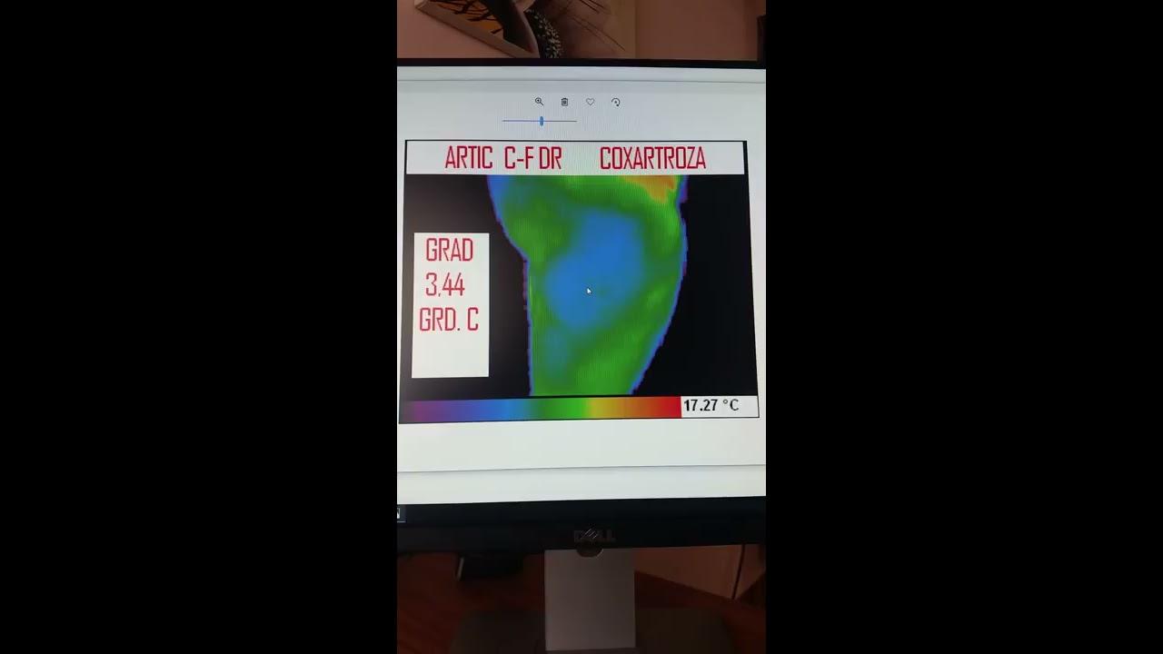 osteoscleroza soldului cum se tratează tratamentul artrozei la gleznă