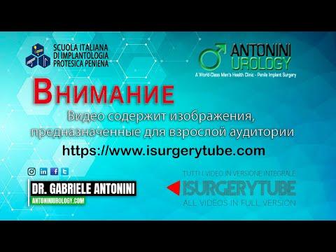 Фаза 1 – активация / дезактивация гидравлического протеза полового члена