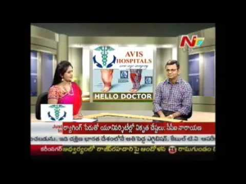 Varicose Veins Clinic Hyderabad | Dr Rajah V Koppala