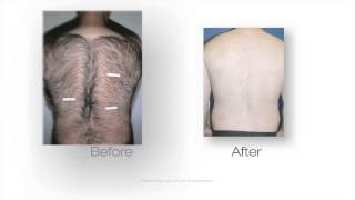 Laser Hair Removal Brandon, FL | 813-653-3473 Thumbnail
