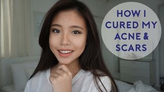 How I Cured My Acne & Acne Scarring | Bhs Indo Subs