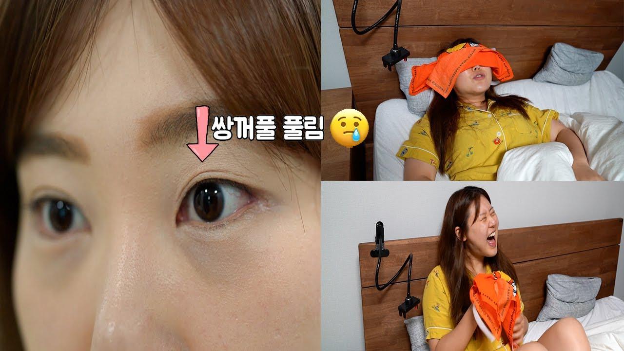 4번째 쌍꺼풀 수술...😅 마지막 재수술이였으면 ㅋㅋㅋ Double eyelid re-operation [G-NI life]