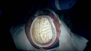 Researchers are tackling fresh questions about a degenerative brain disease now that it has been detected in the brains of nearly 200 football players after ...