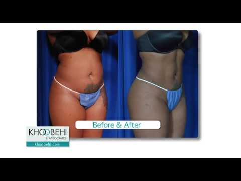 Before & After: Liposuction and Fat Grafting