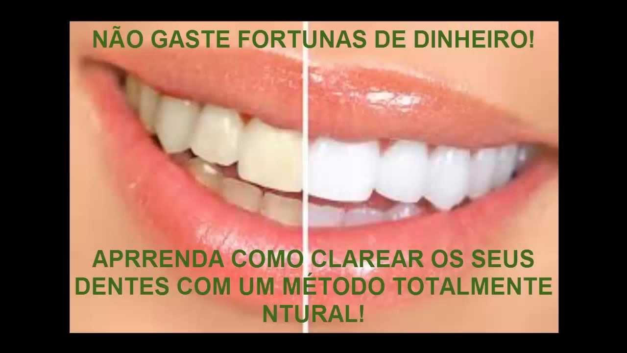 Clareamento Caseiro Dental Aprenda Como Clarear Os Dentes Naturalmente