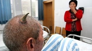 Repeat youtube video Cutaneous Horns - Rare Medical Conditions