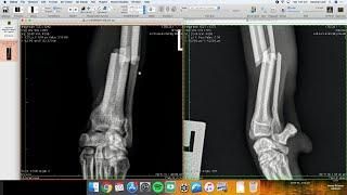Live stream radius ulna - fracture repair in an italian greyhound