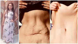 Does Weight Loss Causes Loose Skin.?? || My Loose Skin Story