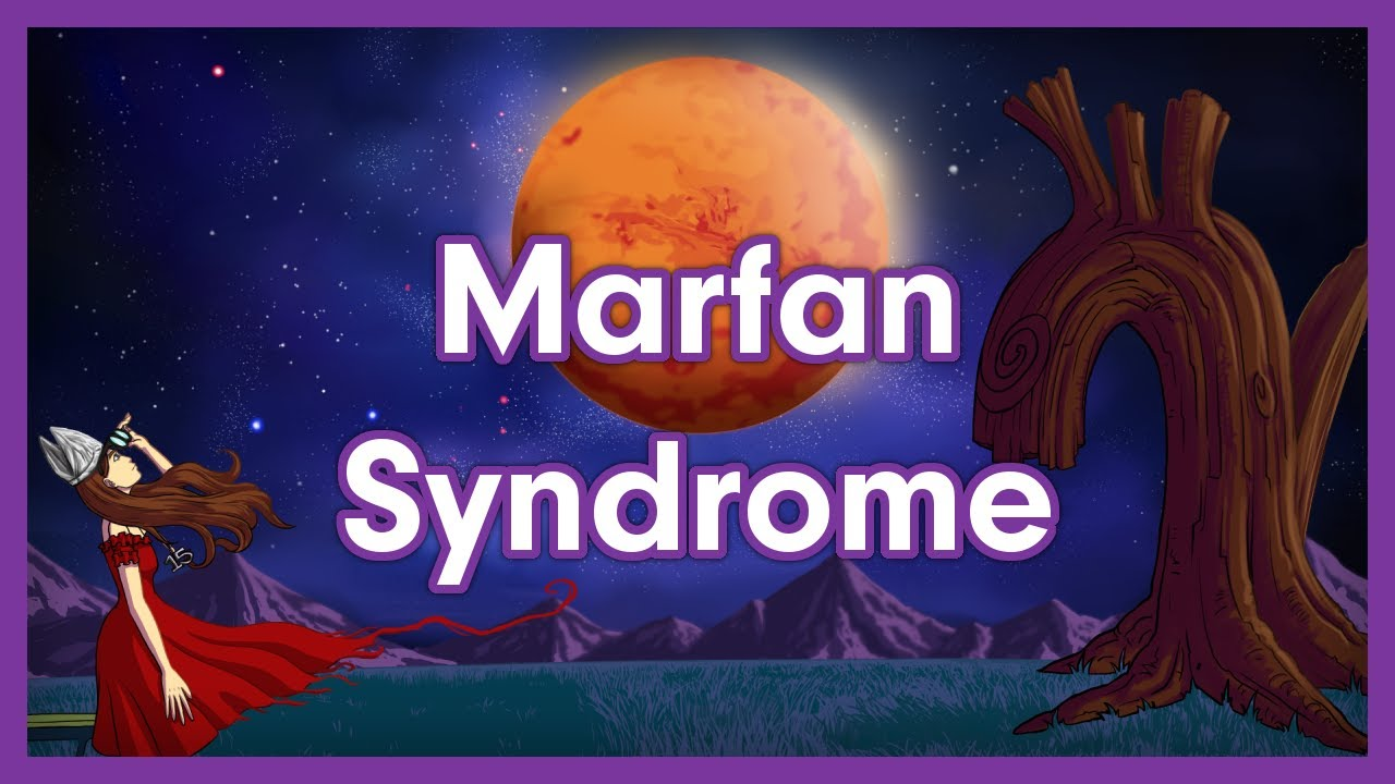 Marfan Syndrome Mnemonic for Usmle