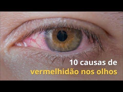 b26882435 10 causas comuns de vermelhidão nos olhos e o que fazer - Tua Saúde
