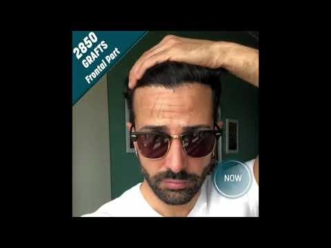 Prima/dopo Trapianto di capelli con Aratravel & Dr. Serkan Aygin Clinic/3