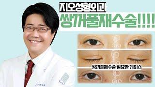 지오성형외과 쌍꺼풀재수술 눈을 감아도, 떠도 자연스럽게
