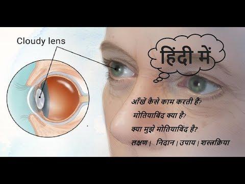 Cataract |मोतियाबिंद | HINDI | How Normal Eyes work | Information in HINDI
