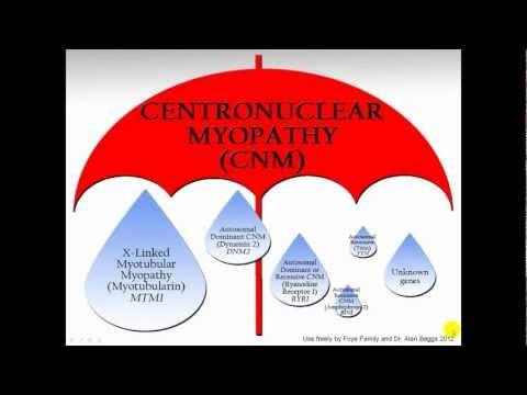Centronuclear Myopathy: Umbrella term for CNM's
