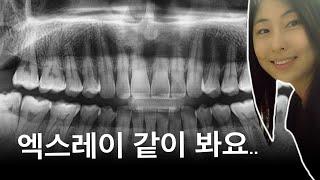 치과에서 보여주는 파노라마 엑스레이 보는 법!!